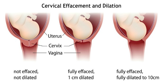 how to know if your dilating