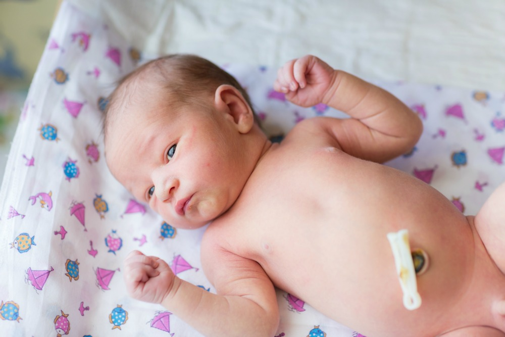 Caring for baby's umbilical stump